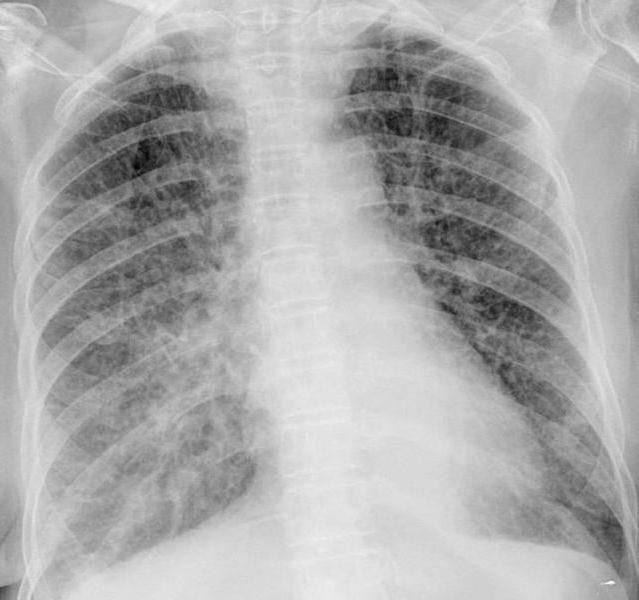 Вирусная пневмония: признаки и лечение у детей и взрослых