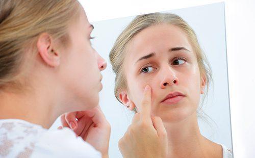 Лечение подкожных прыщей на лице лекарством зинерит