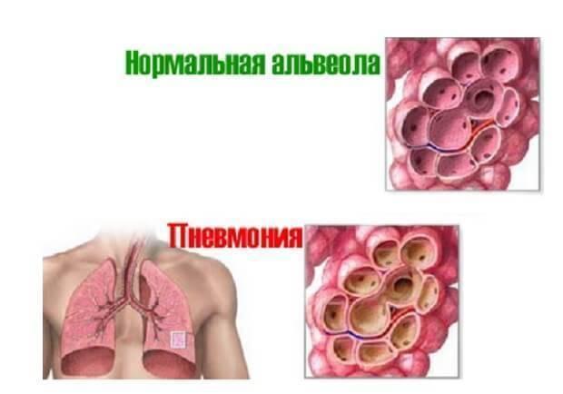Особенности течения и лечения двухсторонней пневмонии легких