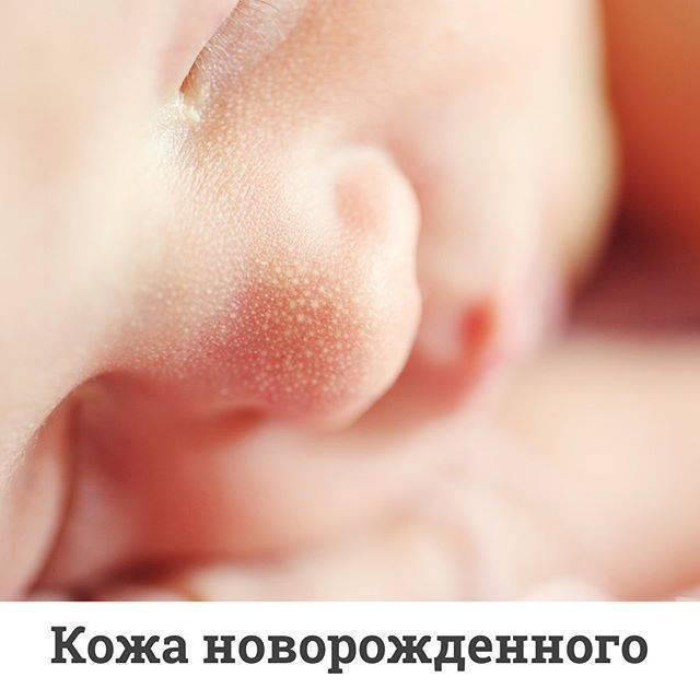 Почему чешется манту у ребенка и опухла, что делать?
