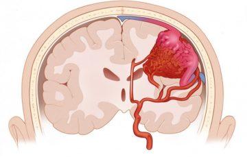 Венозная ангиома: причины и лечение