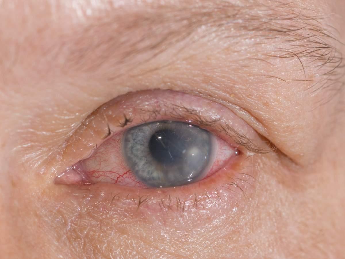 Вирусный кератит: от чего появляется и как лечить