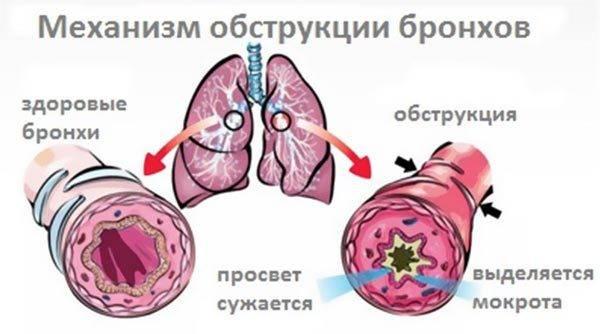 Бронхит – как можно вылечить без антибиотиков