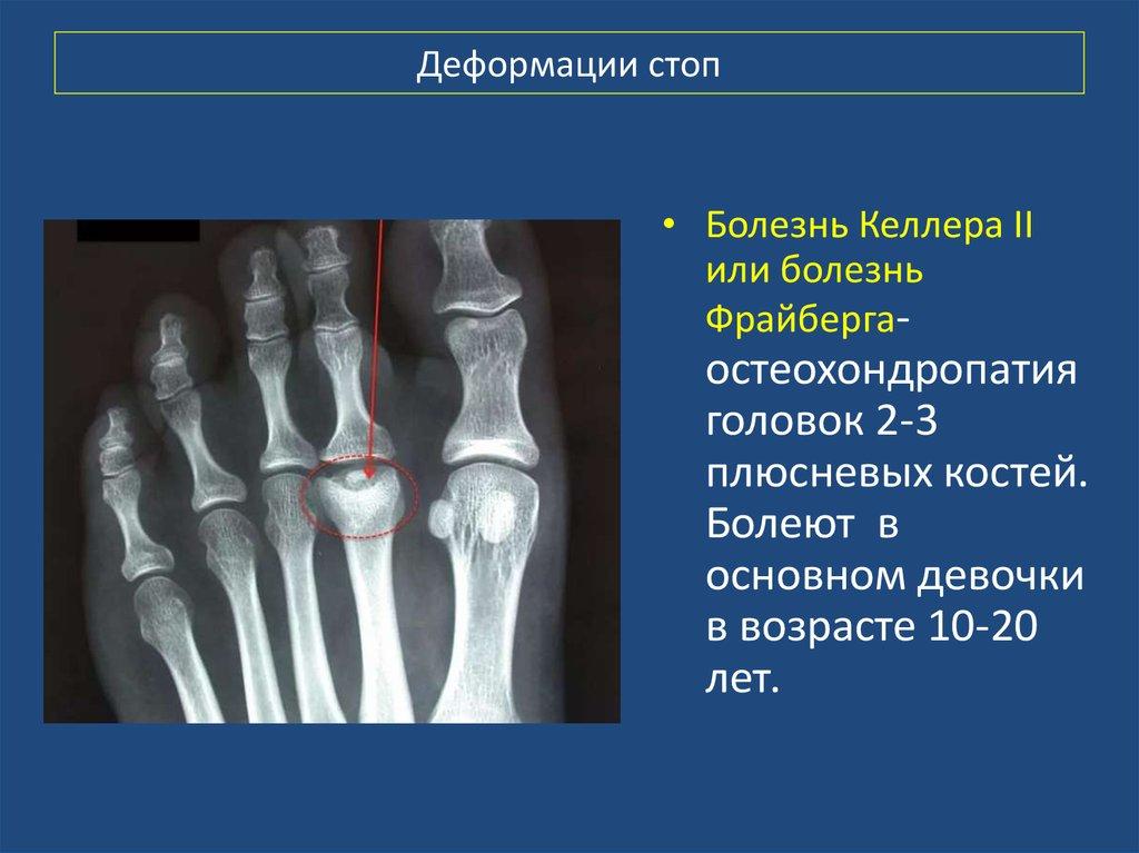 Ладьевидная кость стопы выпирает и болит: фото, лечение и сроки реабилитации после перелома