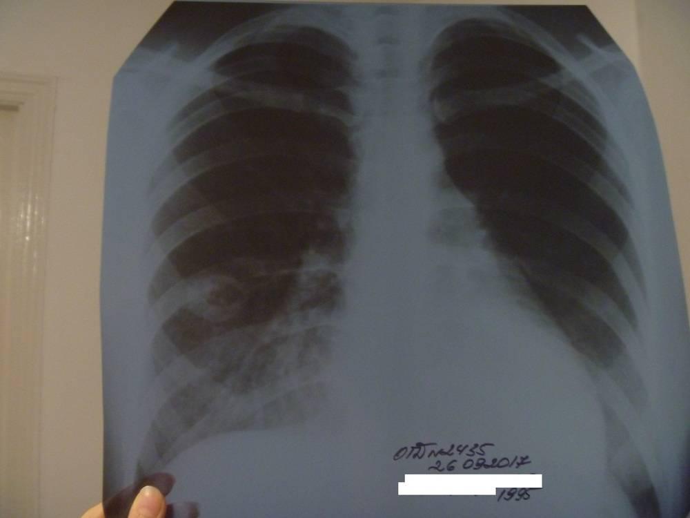 Туберкулез и беременность: последствия и осложнения
