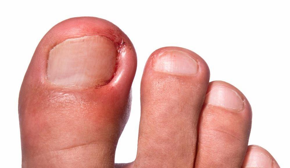 Вросший ноготь – причины, симптомы, способы лечения, профилактика