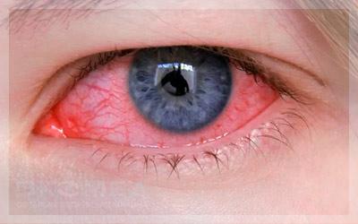 Симптомы и лечение кератита у взрослых и детей
