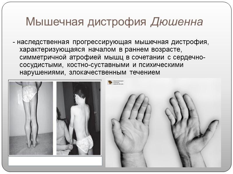 Миопатия дюшенна (мышечная дистрофия): развитие и причины, проявления, лечение