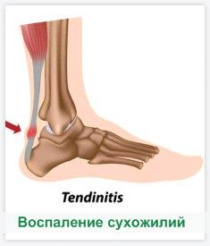 Как лечить тендинит сухожилия