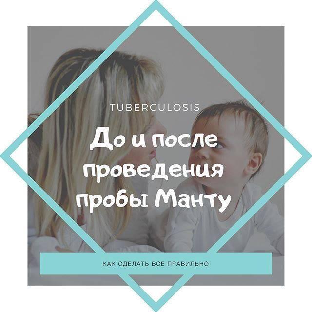 Реакция манту: норма у детей, положительная, отрицательная