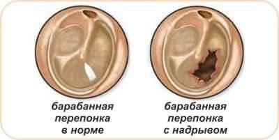 Грибок в ушах: причины, виды, как вылечить, профилактика