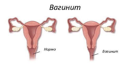 Кольпит – симптомы и лечение у женщин. кольпит – что это такое у женщин? трихомонадный, кандидозный, неспецифический, атрофический кольпит.