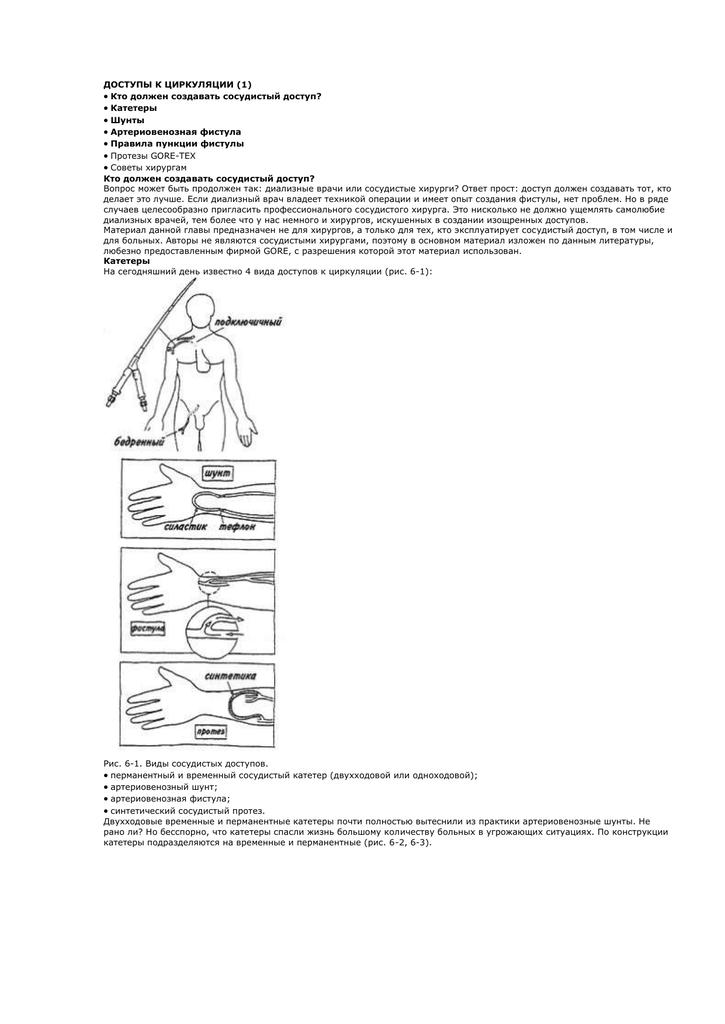 Артериовенозной фистулы