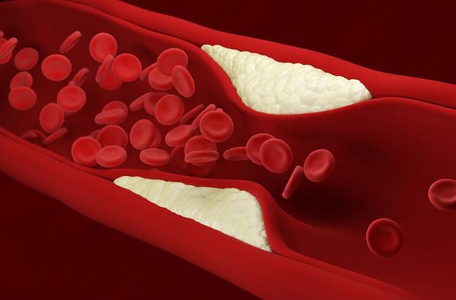 Как вывести избыток вредных веществ из организма? основы диеты при отложении солей в суставах
