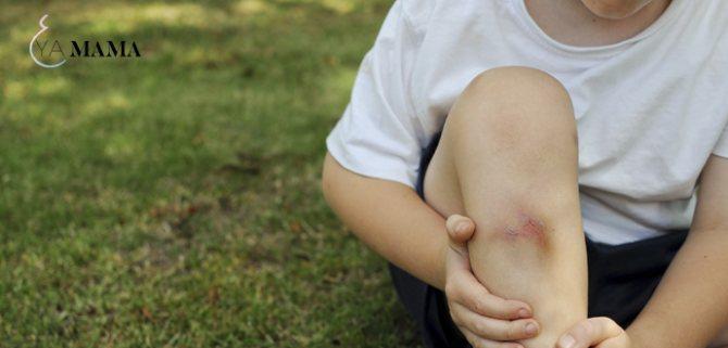 Гематома на ноге после ушиба лечение и причины