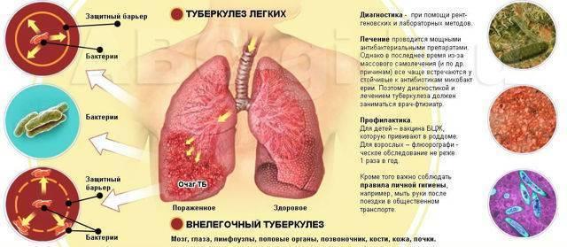 Проверенные методы лечения туберкулеза народными средствами в домашних условиях