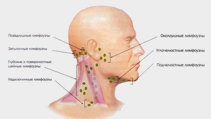Причины, симптомы, стадии и лечение острого и хронического среднего отита