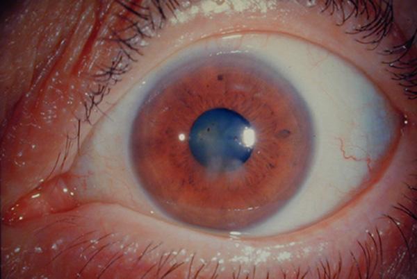 Симптомы и лечение острого кератита