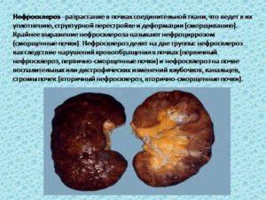 Нефросклероз почек: что это такое и как проявляется