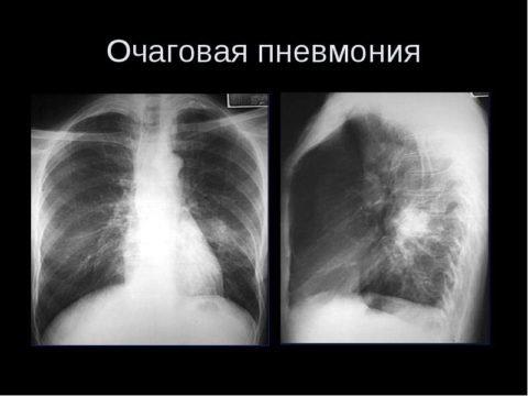 Вирусная пневмония – причины, симптомы, диагностика и лечение
