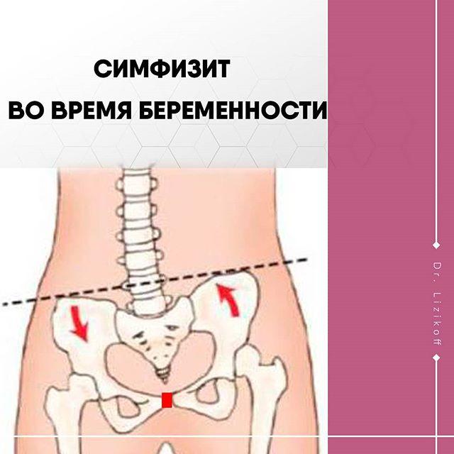 Симптомы и лечение симфизита при беременности