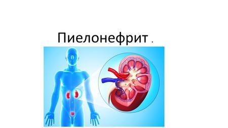 Что такое гломерулонефрит с нефротическим синдромом