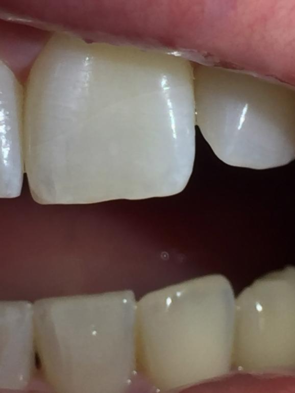 Основные причины по которым портятся здоровые зубы