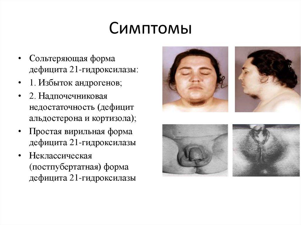 Адреногенитальный синдром - симптомы болезни, профилактика и лечение адреногенитального синдрома, причины заболевания и его диагностика на eurolab