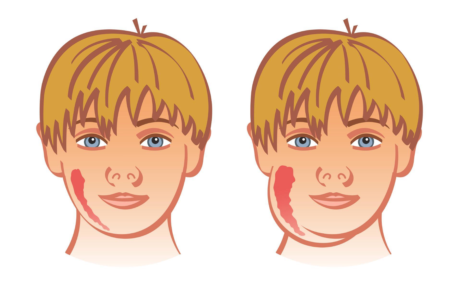 Свинка (паротит) у мальчиков: последствия, симптомы и лечение, чем опасна болезнь, может ли мальчик иметь детей после заболевания