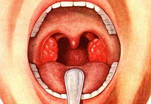 Как понять что у ребенка аденоиды в носу? симпотомы аденоидов и от чего они бывают