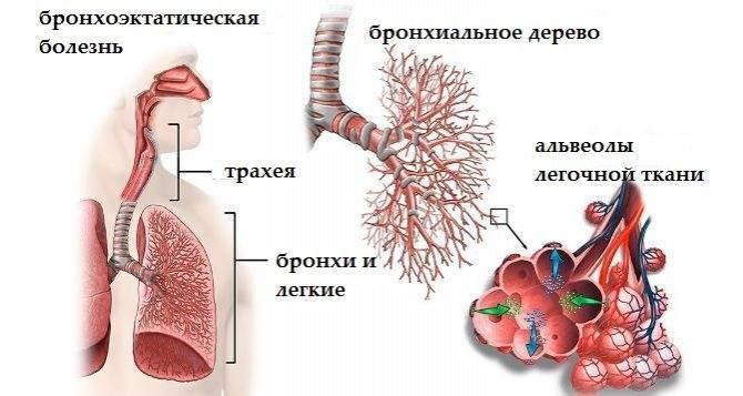 Прикорневая пневмония симптомы у детей и лечение