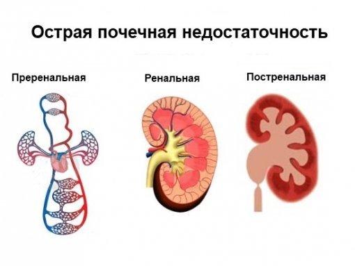 Нефросклероз почек лечение