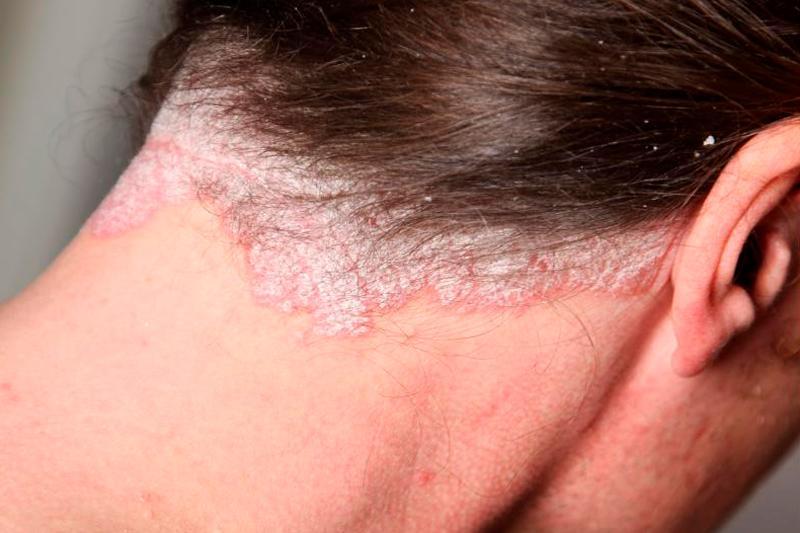 Себорейный дерматит волосистой части головы фото, а так же лица