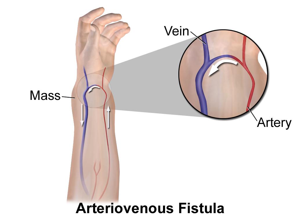 Артериовенозные свищи (фистулы): патофизиология, причины, диагностика, лечение | кардио болезни