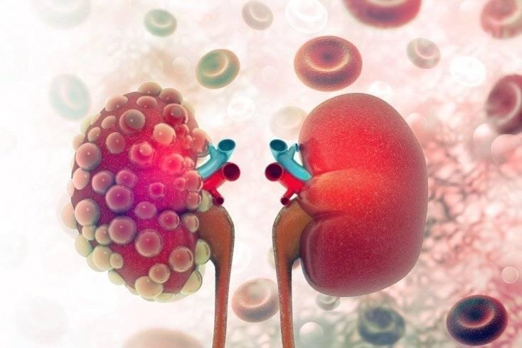 Туберкулез почек – клинические симптомы, особенности диагностики и лечения заболевания