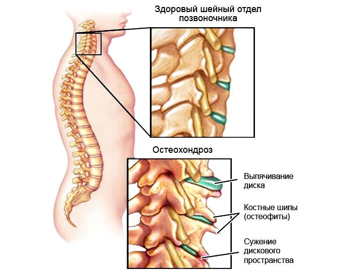 Основы лечения остеохондроза шейно-грудного отдела позвоночника в домашних условиях