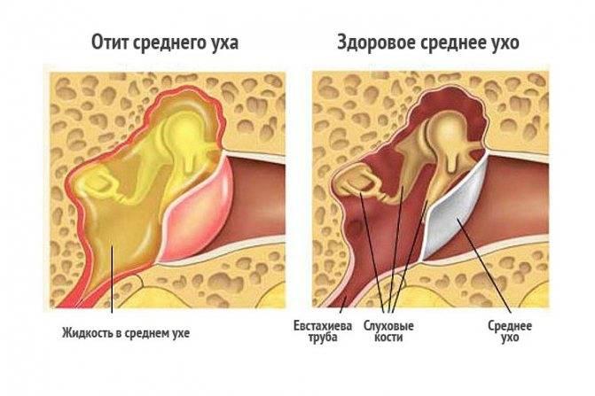 Гнойный отит: в чем его опасность? стадии, лечение и осложнения заболевания