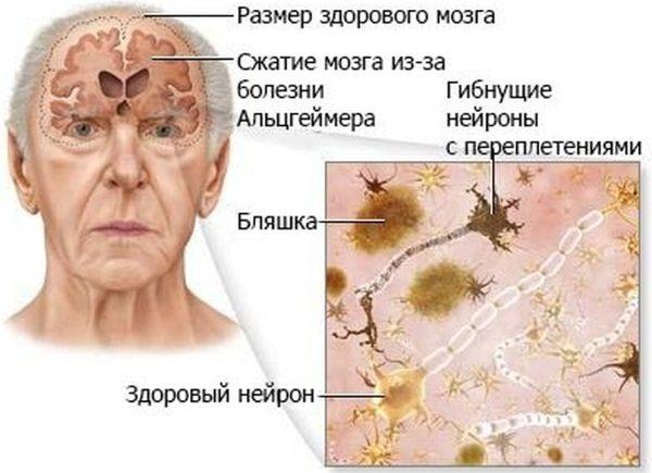 Деменция.ру