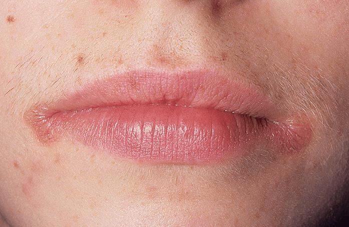 Ангулит: лечение трещинок в уголках губ