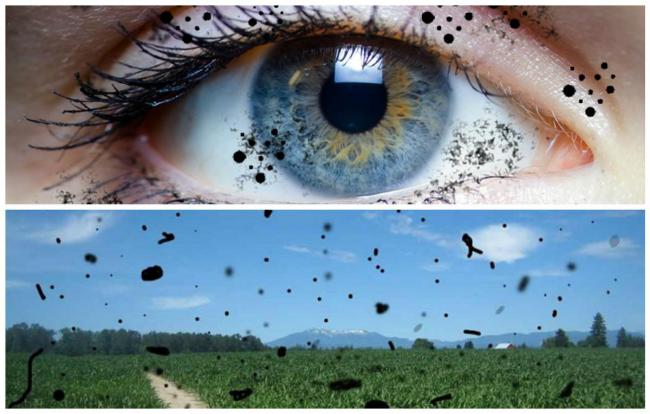 Что такое стекловидное тело глаза и плавающие помутнения в нем