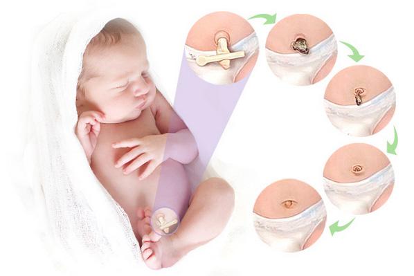 Мокнет пупок у новорожденного: что делать, лечение, чем обработать