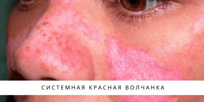 Красная волчанка: причины, симптомы и лечение