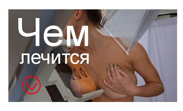 Мастопатия симптомы и лечение