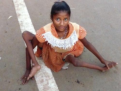Есть тут кто-нибудь, кто водит своих непривитых детей в группы вместе с привитыми живой полио? - запись пользователя дарья (id1954645) в сообществе мы против прививок! в категории полиомиелит - babyblog.ru