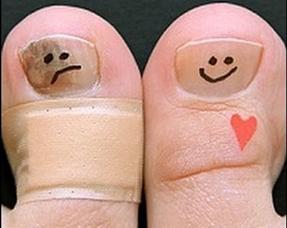 Что такое онихомикоз? как лечить грибок ногтей?