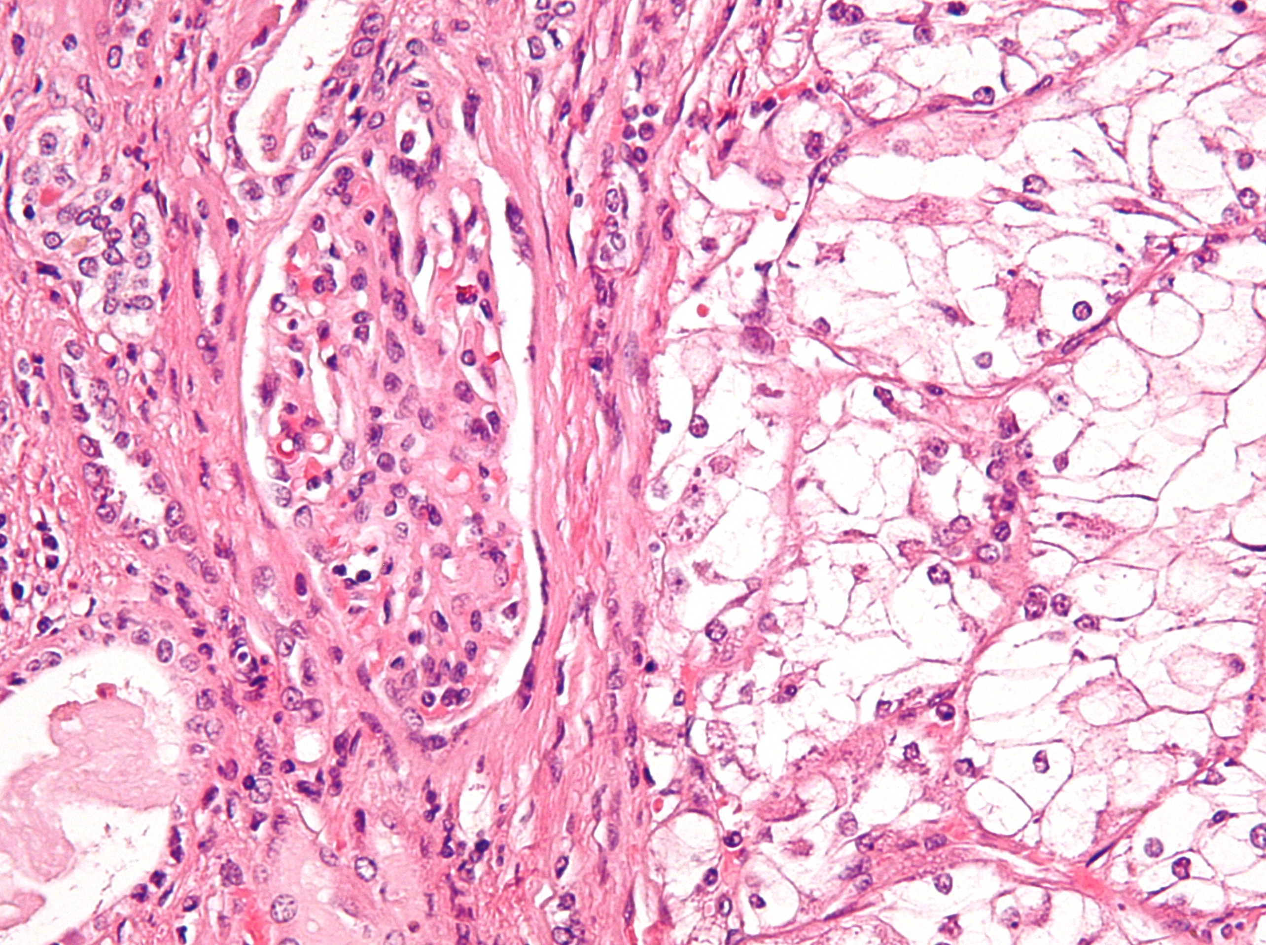 Что нужно знать про аденокарциному