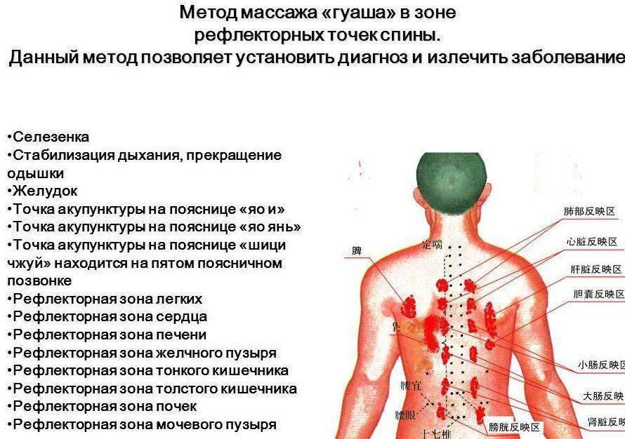 Массаж при пневмонии у взрослых