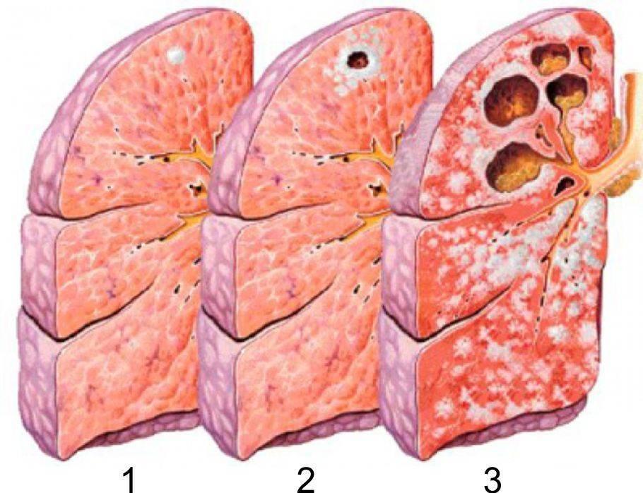 Мокрота: понятие, из чего состоит, виды и возможные цвета и диагностика по ним, обзор заболеваний