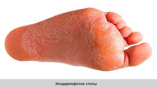 Паховая эпидермофития у женщин – лечение в домашних условиях