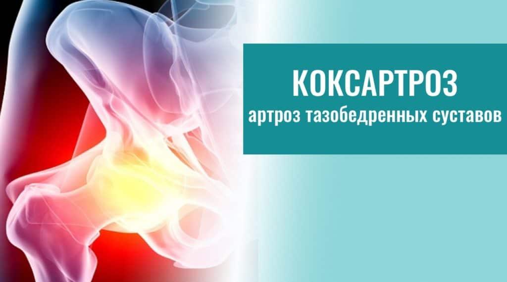 Коксартроз тазобедренного сустава 1 степени: симптомы, лечение, прогноз